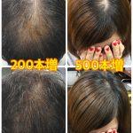 札幌で薄毛のお悩みはトリムヘアーへ|エクステ増毛~Q&A~
