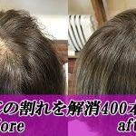 女性の薄毛の悩みつむじの割れのお悩みなら札幌のトリムヘアーへ