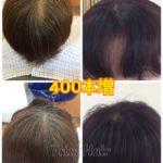 誰にも気付かれずに薄毛や生えクセ割れを解消したい時は増毛がオススメ!