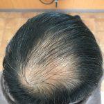 すきま隠し|男性の薄毛の悩み