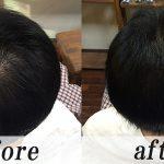 薄毛の悩み男性型脱毛症AGA
